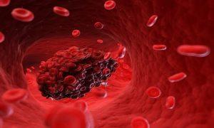 ۱۵ نشانه ترسناک وجود لخته خون در بدن